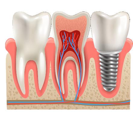 Dental-implants-doral