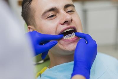 Teeth-whitening-treatment